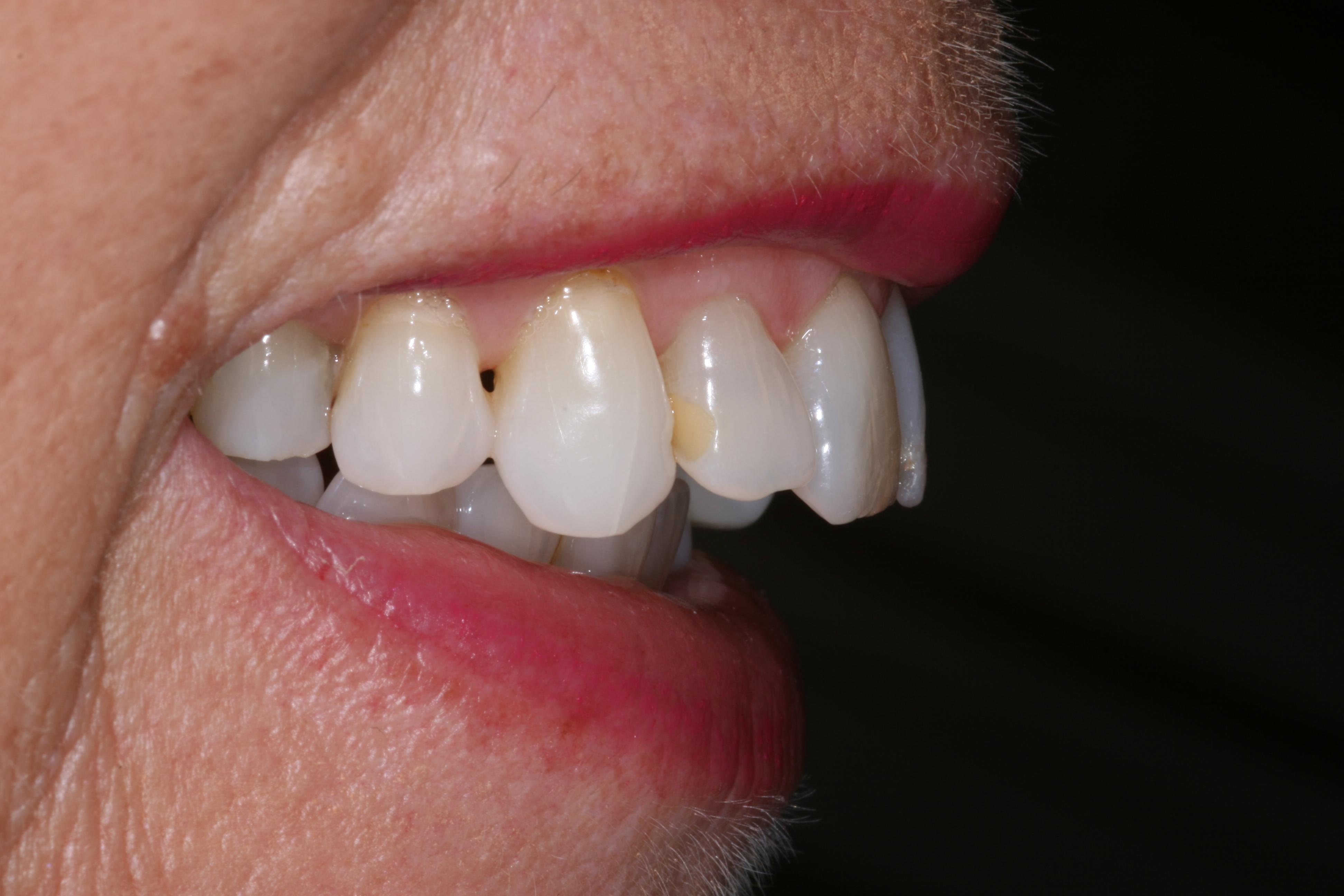 Veneers For Broken Teeth Blue Court Dental Centre Harrow