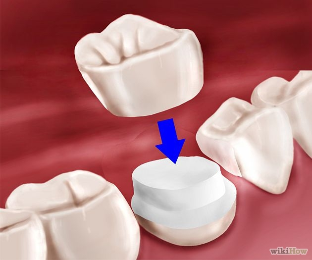 What Are My Options For Cosmetic Dentistry