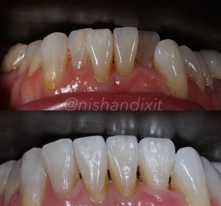 Orthodontics | Blue Court Dental Centre, Harrow