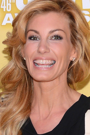 Faith Hill has adult orthodontic braces